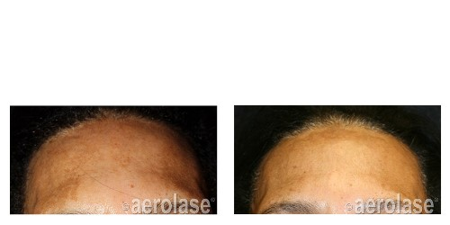 After 1 Treatment combined with TCA Peel